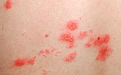 Lunares o verrugas pueden ser VPH